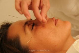 acupuntura-pictures-021